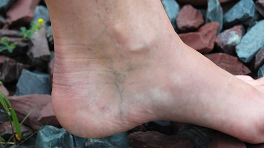 Causes Symptoms Of Varicose Veins Physicians Vascular Services