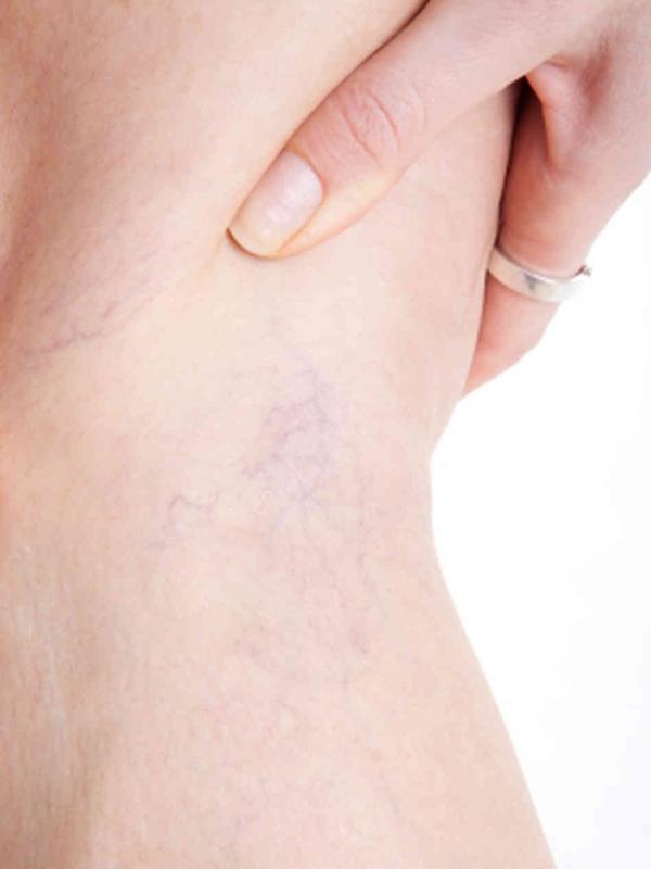 varicose veins inner thigh