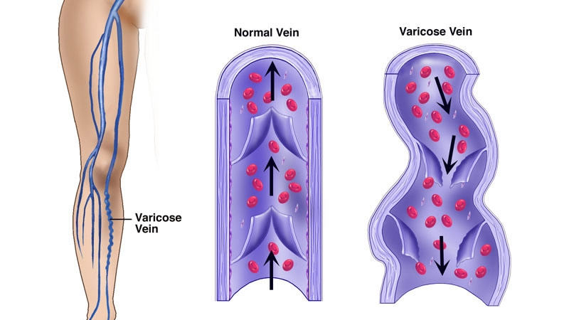 Physician's Vascular Services - El Paso - What are Varicose Veins?