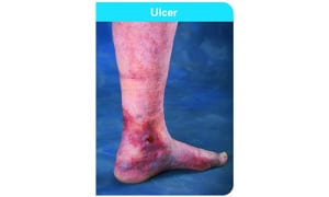 4864-Venous_Leg_Ulcers