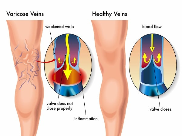 vein care graphic showing varicose veins vs healthy veins