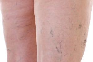close up of legs affected by varicose veins in need of a vein center