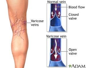 vein-doctor-in-el-paso, vein-health-in-el-paso