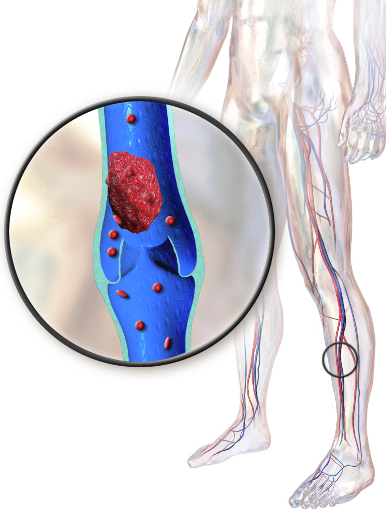 Our Varicose Vein Blog Page   Physicians Vascular Services
