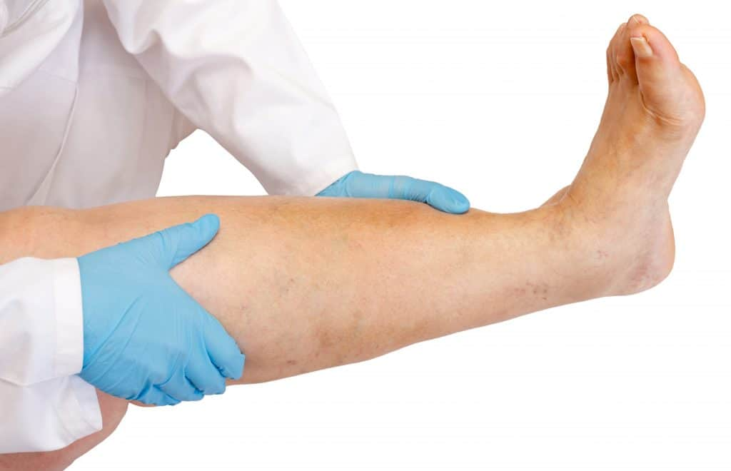 doctor holding up a leg that is starting to be affected by varicose veins
