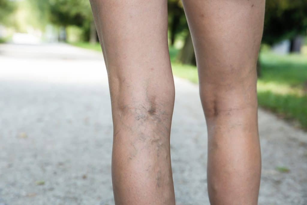 back of a person's legs that are affected by varicose and spider veins