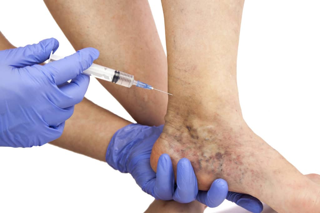 ankle affected by varicose veins getting proper medical care