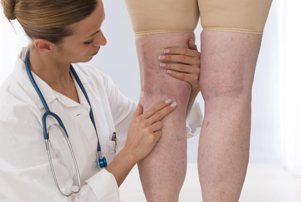 doctor examining legs during a routine vein care appointment