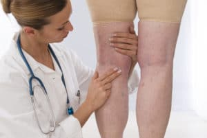 Vein doctor examining the backs of a patient's leg who is suffering from varicose veins.