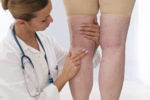 una doctora examinando las piernas de una señora mayor con problemas vasculares