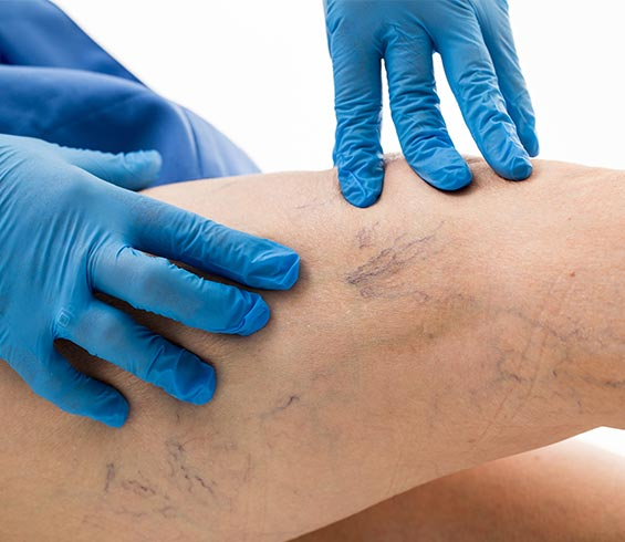 specialist checking legs with varicose viens