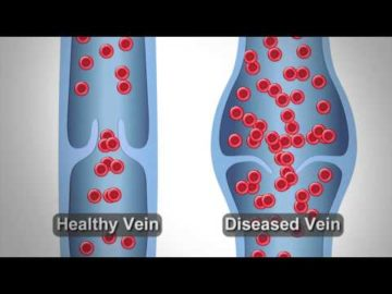 We'll Give You The Treatment You Need! - Physician's Vascular Services - El Paso, TX