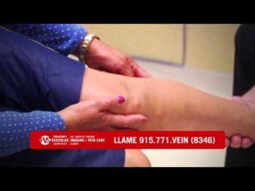 Profesional y Amable Personal para el tratamiento de venas varicosas