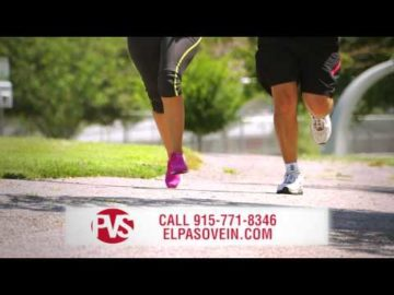 Have Varicose Veins? Call Today! - Physicians Vascular Services - El Paso, TX