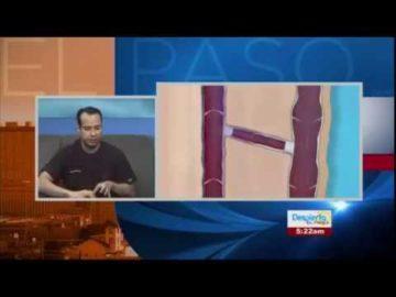 Entrevista con Despierta El Paso! Sintomas y Tratamientos de venas varicosas