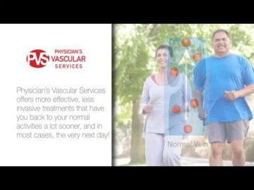 What are Varicose Veins? Physician's Vascular Services - El Paso, TX